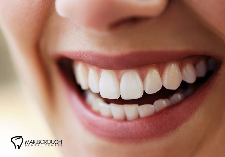 5 Ways a Gum Graft Can Improve Your Oral Health