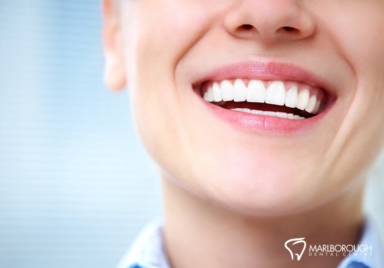 How Dental Veneers Can Restore The Aesthetics to Your Smile