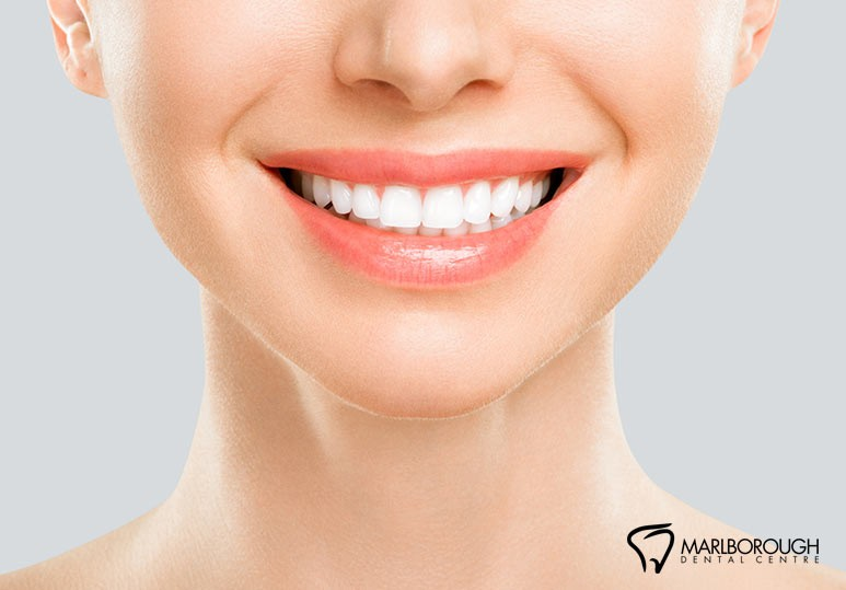 4 Factors That Could Affect the Results of Your Teeth Whitening Treatment