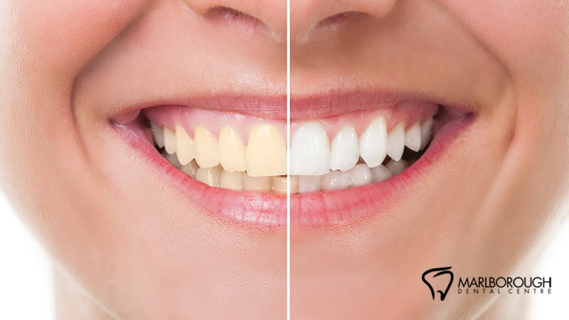 5 Reasons Why You Should Get Your Teeth Whitened by a Dental Professional