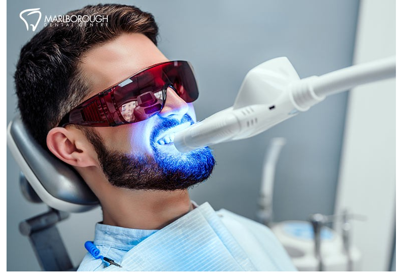 How To Take Care of Your Teeth Before and After a Teeth Whitening Treatment
