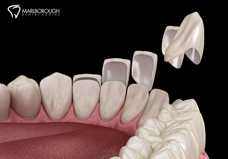 4 Common Questions About Veneers Answered