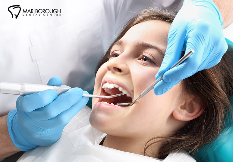 Everything You Need To Know About Dental Scaling